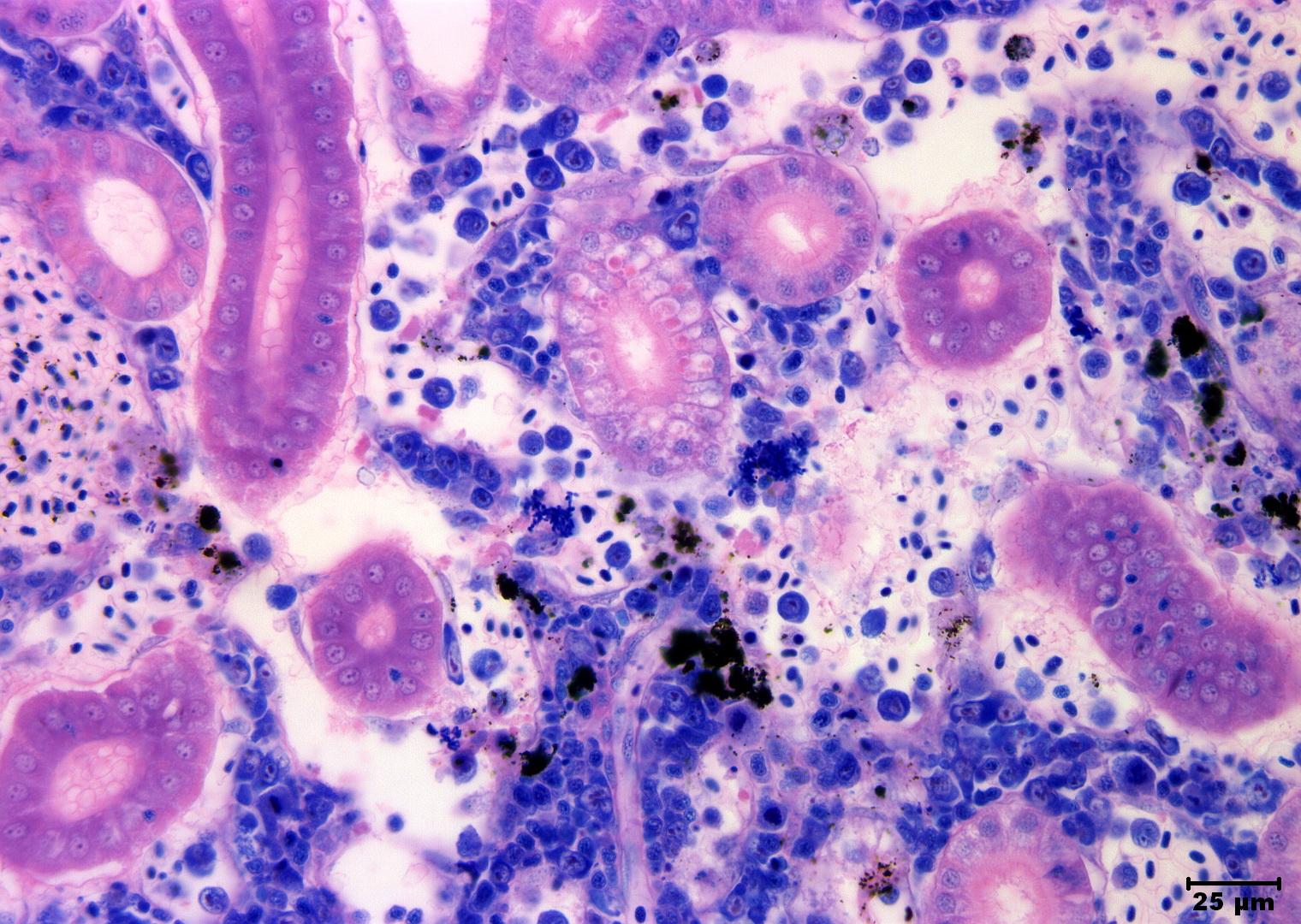 Slide 19 Kidney Aeromonas Salmonicida Giemsa 400xg Fish Pathogens