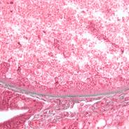 Boundary between host and glugea xenoma