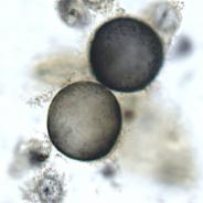 Ichthyobodo in fish skin smear.