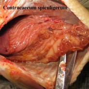 Contracaecum nematodes in mesenterial membranes.