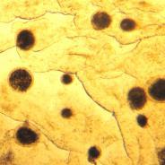Heavy infestation of Ichthyophthirius.