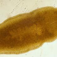 Adult sanguinicolid fluke.