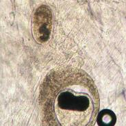 Metacercaria of Nanophyetus and an unknown trematode in fresh tissue squash.