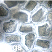 Hysterothylacium sp. nematode eggs.