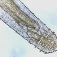 Anterior (head) end of adult Spinitectus nematode.