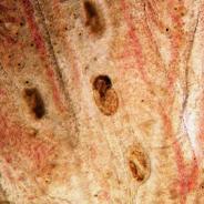 Trematode metacercaria in gills.