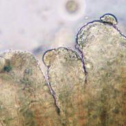 Trichodinella on gills.