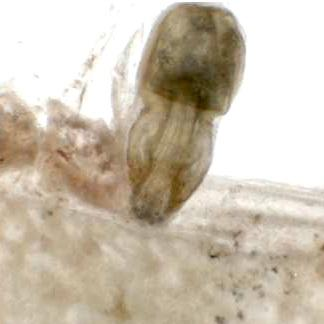 Female Echinorhynchus lageniformis.