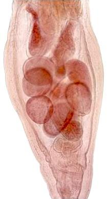 Male Echinorhynchus lageniformis.