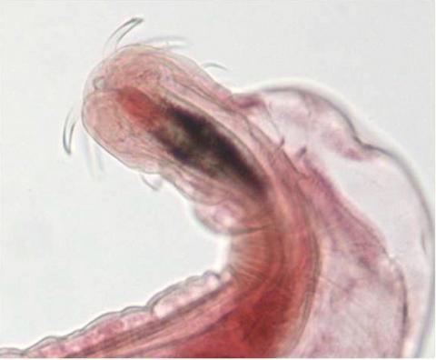 Proboscis of female Neoechinorhynchus sp.