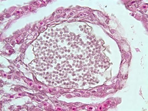 Dermocystidium cyst