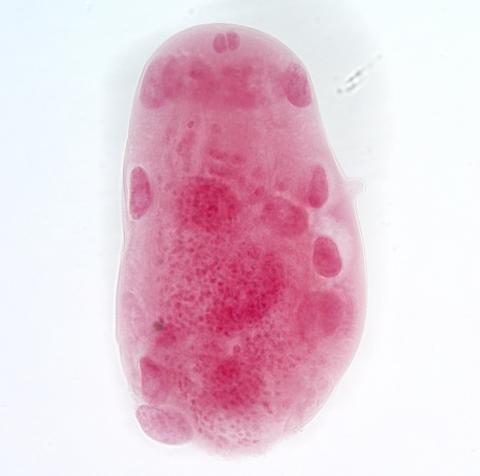 Echinorhynchus lageniformis acanthella stage