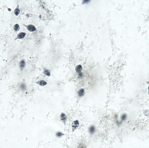 Hexamita in stained skin smear