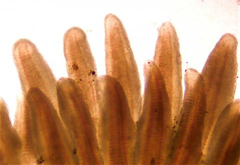 Gills showing fuzzy margins associated with BKD