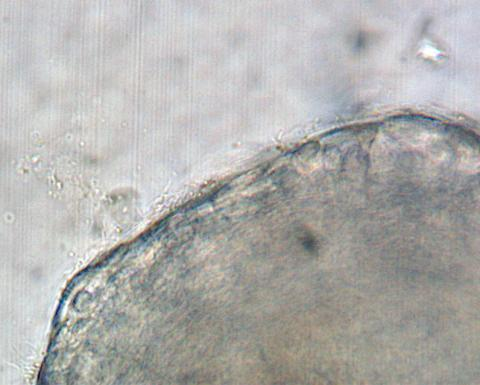Filamentous flavobacteria on surface of gill.