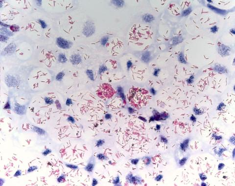 Acid fast stain of mycobacterium.