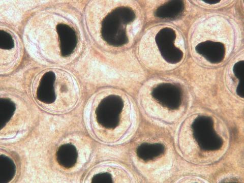 Nanophyetus metacercaria in fresh tissue squash of intestine.