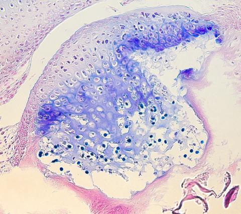 Myxobolus cerebralis developing in head cartilage.