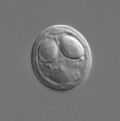 Myxobolus cerebralis myxospore.