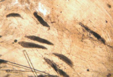 Myxobolus insidiosus cysts in muscle.