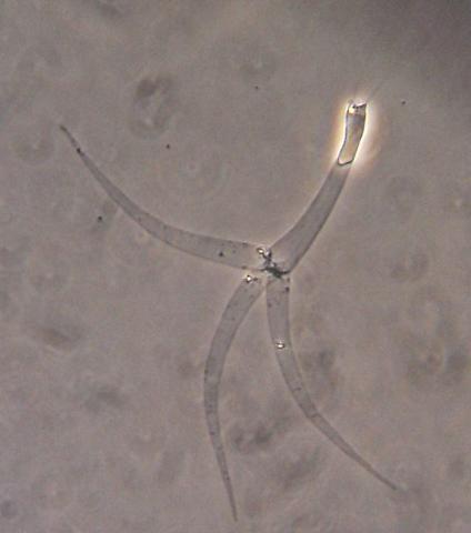 Myxobolus cerebralis actinospore with fired polar filaments.