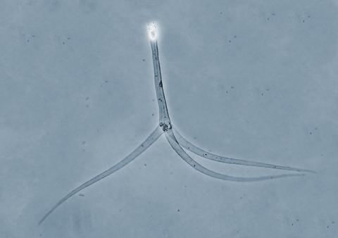 Typical triactinomyxon-type actinospore.