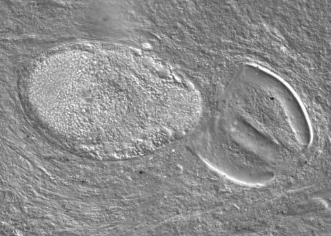 Adult trematode ruptured out of metacercaria.