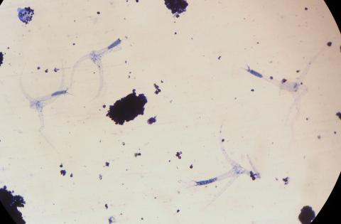 Triactinomyxon spores of M. cerebralis.