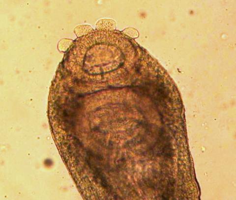 Adult Crepidostomum fluke showing anterior sucker.