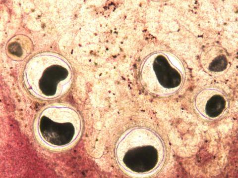Nanophyetus metacercaria in fresh tissue squash.