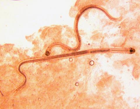 Adult Camallanus nematodes.