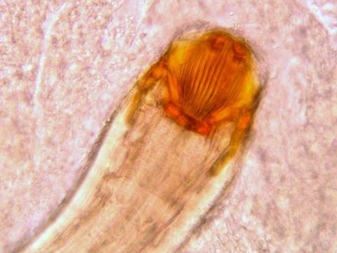 Distinctive mouthparts of Camallanus nematode.