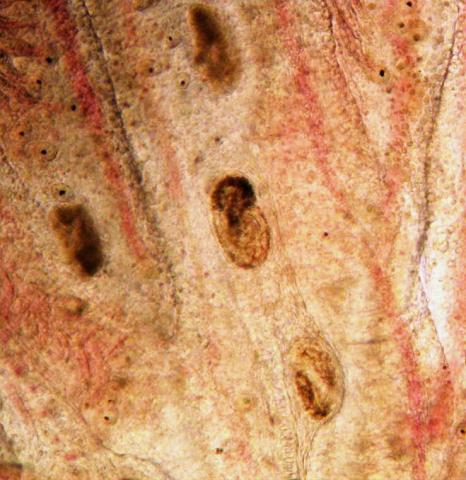 Trematode metacercaria in gills.