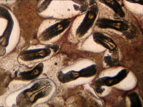 High magnification view of liver squash showing heavy infestation of white grub.