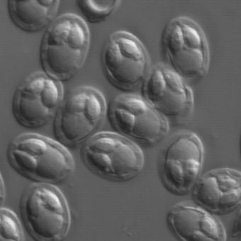 Myxobolus spores from the gallbladder of redside shiner.