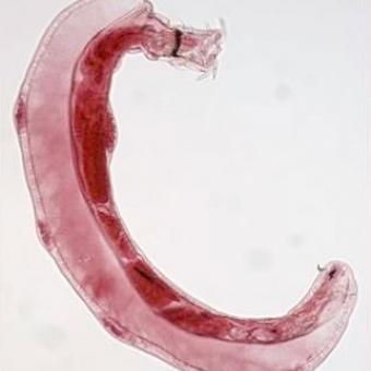 Male Neoechinorhynchus sp.