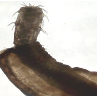 Anterior end of Rhadinorhynchus acanthocephalan.
