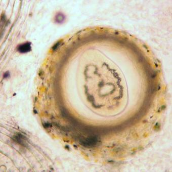 Trematode metacercaria from skin of trout.