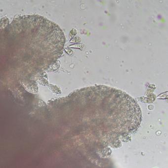 Ambiphrya cilliates on gills.