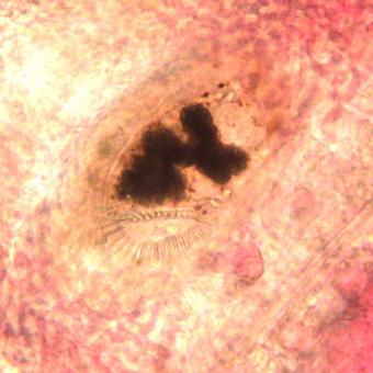 Trematode (Family Heterophyidae) developing within gill filaments.