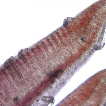 Dactylogyrus on gill filaments.