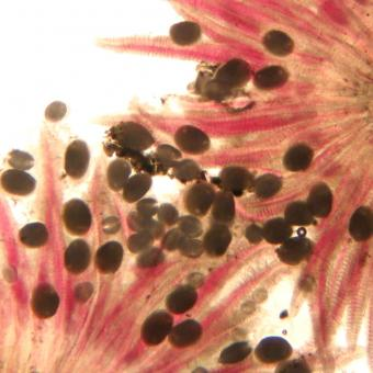 Larval molluscs (glochidia) on gills of salmon.
