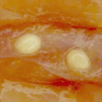 Fish muscle showing numerous white cysts of Henneguya salminicola.