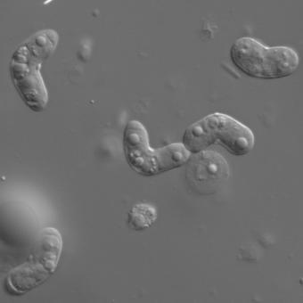 Mature Ceratomyxa shasta myxospores.