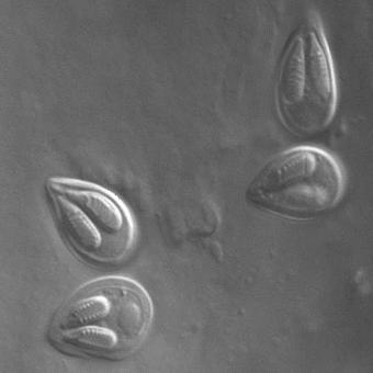 Myxobolus insidiosus myxospores.