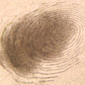Myxobolus squamalis cyst beneath scale.
