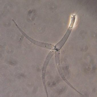 Myxobolus cerebralis actinospore with fired polar filaments.