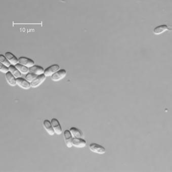 Microsporidian spores.