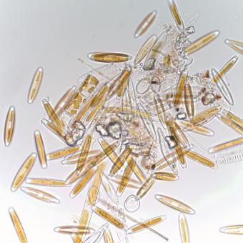 Diatoms: commonly seen in skin scrapes of fish.