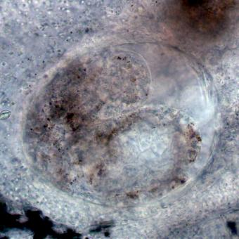 Developing Echinochasmus in gills of Oregon chub.